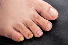 Close-up with male fungal disease male toenails. Before treatment as dermatology and podiatry concept stock images