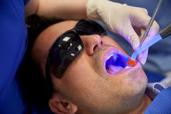 Close up of male patient with dental curing light Royalty Free Stock Image