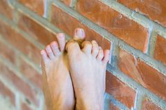 Man with athlete foot. Close up of man athlete foot with health concept royalty free stock photo