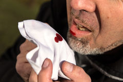 Close up, man with bloody tissue. Close up from a man with bloody tissue Royalty Free Stock Images