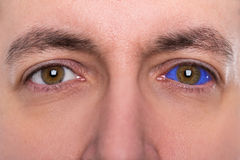 Close up, man with a blue eyeball tattoo stock photography