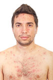 Close up man with chickenpox Royalty Free Stock Image