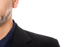 Close up from a man with dandruff. Isolated on white Stock Photography