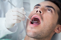Close up of man having his teeth examined Royalty Free Stock Photography