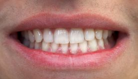 Mouth and teeth Royalty Free Stock Images