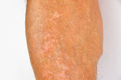 Pigmentation on legs. Close up of man with red vitiligo affected pigmentation on legs Stock Photo