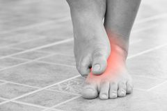 Close up man scratch the itchy feet by other foot at home. Healthcare and medical concept royalty free stock photos