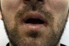 Close-up on a man with two oral herpes (herpes simplex) on his mouth. Royalty Free Stock Photo