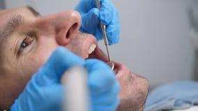 Close-up mannelijke patiënt die tandbehandeling ontvangen stock video