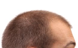 Close up of mans head. Royalty Free Stock Photo