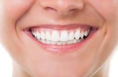 Close-up met perfecte glimlach stock fotografie