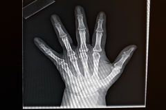 Close up of modern x-ray display of human hand Stock Photography
