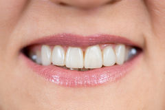 Close up of a mouth and restored teeth Royalty Free Stock Photo