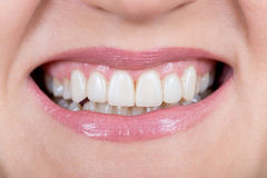 Close up of a mouth and restored teeth Royalty Free Stock Image