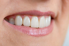 Close up of a mouth and restored teeth Stock Image
