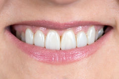 Close up of a mouth and restored teeth Stock Images