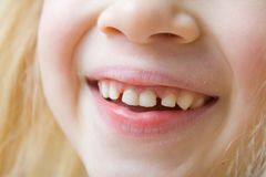 Close up mouth of smiling baby girl with milk teeth and her First molar teeth. Health care, dental hygiene and childhood concept stock images