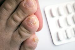 Close up of nail fungus infection on toe finger royalty free stock photo