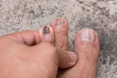 Close up of Nail infections.  Royalty Free Stock Photography