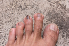 Close up of Nail infections.  Royalty Free Stock Photos