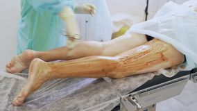 Close up nurse hand disinfects patient leg before varicose vein surgery in operation room. Concept of phlebology, sclerotherapy stock video
