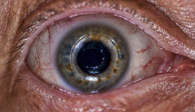 Free Close Up Of An Eye Stock Images - 57276404