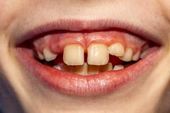 Close-up Of Child Of Eight Years With The Problem Of Not Loosing His Baby Teeth 10 Month After Treatment - Persistent Royalty Free Stock Photography