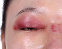 Free Close-up Of Upper Eye Lid Swell After Nose Job Stock Photo - 51569260