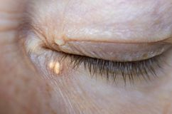Free Close Up Of Woman Eyes With Xanthelasma On The Eyelids. Hypercholesterolemia, High Cholesterol Royalty Free Stock Photography - 154977977