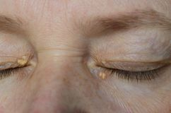 Free Close Up Of Woman Eyes With Xanthelasma On The Eyelids. Hypercholesterolemia, High Cholesterol Royalty Free Stock Photos - 154977978