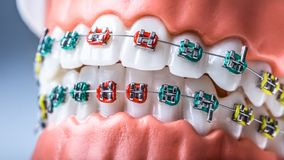 Close-up of a orthodontic model jaws and teeth with braces royalty free stock photography