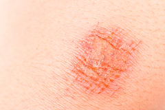 Close up on painful bruise wound on the knee.  Stock Photos