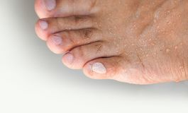 Close up painful swollen toes foot problem stock images