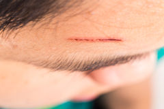 Close up of painful wound on forehead from deep cut Royalty Free Stock Photo