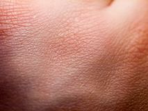 Close up of pale white skin texture hand. Essex; england; uk Royalty Free Stock Photos