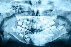 Close up. A panoramic view of the jaw of a 5 year old child. Change of milk teeth to permanent ones. Medical research, aesthetic