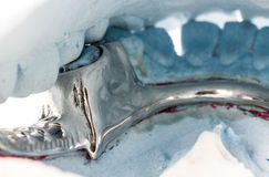Close up partial denture on a plaster mold Royalty Free Stock Photo