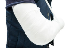 Close-up of patient with fractured forearm after accident. Or body trauma as painful recovery concept stock image