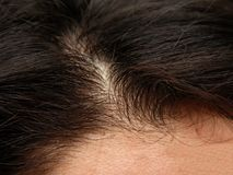 Close up of a persons head Stock Photos