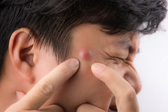 Close up photo of acne prone skin, a man squeezing his pimple royalty free stock photography