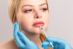 Close-up portrait of a girl who is injected with Botox stock photography