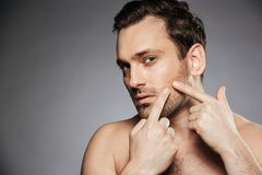 Close up portrait of a concentrated shirtless man. Squeezing pimple on his face isolated over gray background stock images