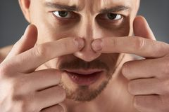 Close up portrait of concentrated young bearded man squeezing acne with fingers stock photography