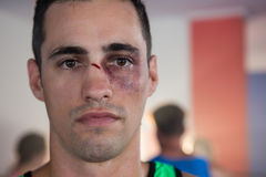 Close-up portrait of male boxer with nose injury stock image