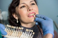 Close-up portrait of woman in dental clinic office. Dentist checking and selecting colour of the teeth. Dentistry Stock Photo