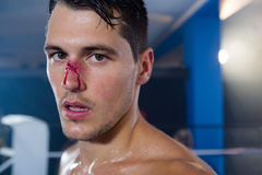 Close-up portrait of young boxer with bleeding nose stock photography