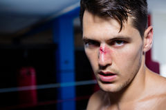 Close-up portrait of young male boxer with bleeding nose Royalty Free Stock Photography