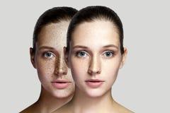 Close-up before and after portret van mooie donkerbruine vrouw die na laserbehandeling sproeten op gezicht verwijderen die camera stock afbeelding