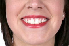 Close up of a pretty smile and great skin. Nose to chin image of girl smiling Stock Photography