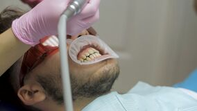 Close up of a professional dental polish at the clinic